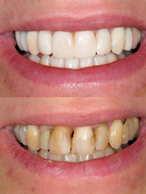 dental veneers for decay before and after